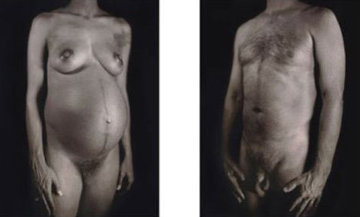 Untitled - Man / Woman (From Doctors of the World [Medecins Sans Frontieres] Portfolio 200 Limited Edition Print - Chuck Close